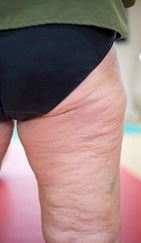 how to reduce cellulite in your legs